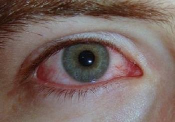 Медики обнаружили еще один возможный симптом коронавируса COVID-19