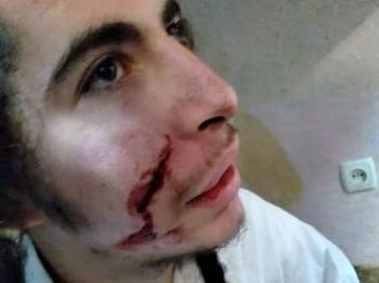 Антисемитизм на Украине: в Умани неизвестные изуродовали подростка-хасида